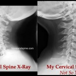 My Not So Normal Spine